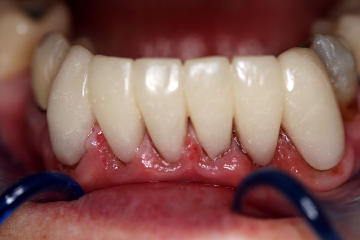 lower_anterior_replacement_crowns_after