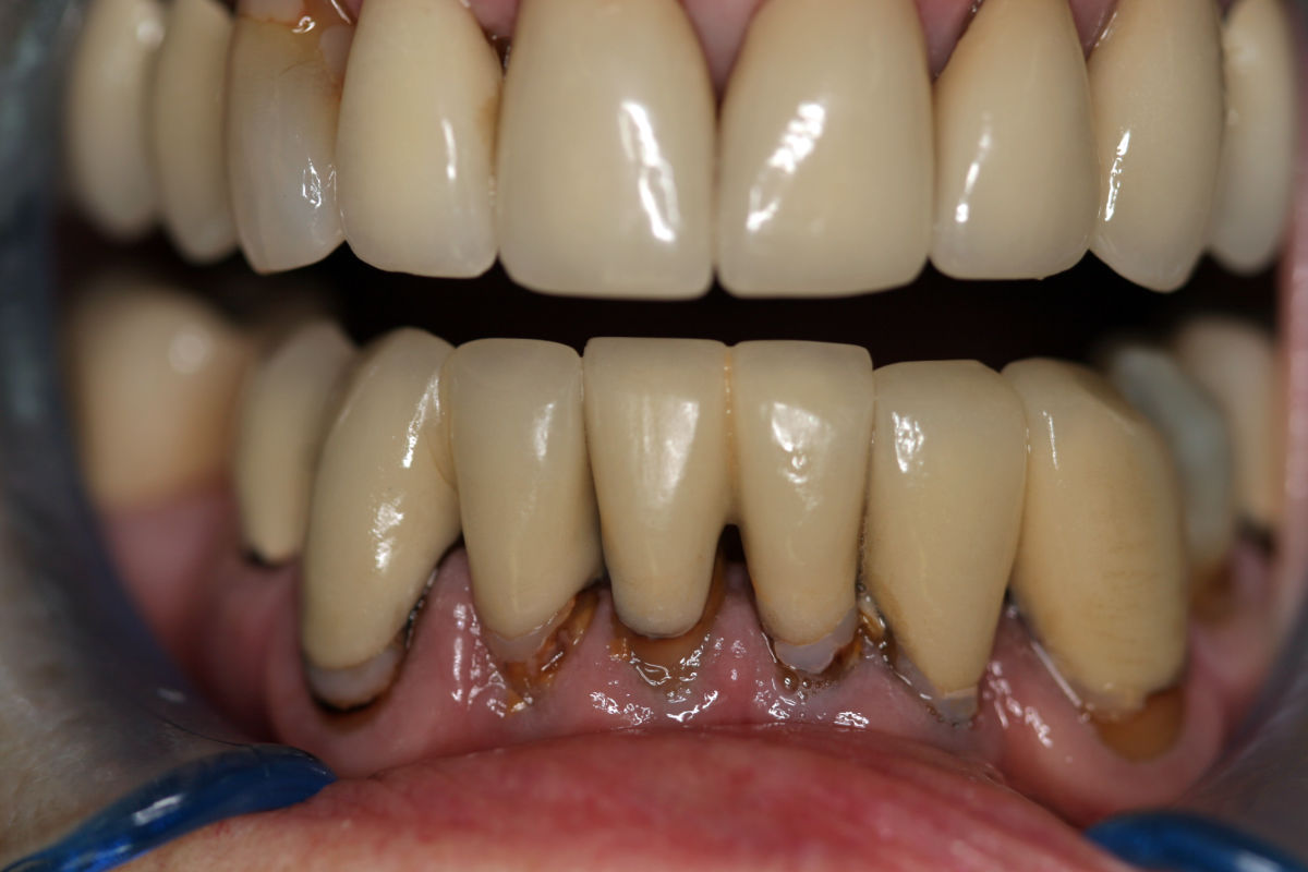 lower_anterior_replacement_crowns_before